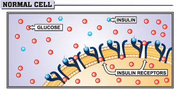 Normal cell: insulin resistance